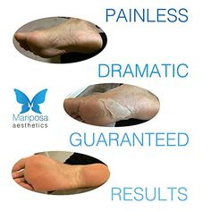 ★ Soft Foot Treatment by Mariposa Aesthetics ★ BEST 2 in 1 Treatment including Exfoliator and Moisturizer Masks - DIY Foot Spa Treatment - Baby Soft Feet and Dramatic Long Term Results - All Natural Deep Exfoliation Mask for Dead Skin Peeling, Callus Removal and Heel Repair - Second Stage Moisturizer Mask with Jojoba Oil and Shea Butter ★ BONUS Milk Moisturizer included ★ FREE eBook for Home Foot Remedies and Soft Silky Feet ★ 100% Satisfaction Guaranteed!