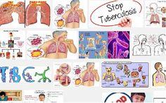Pencegahan dan Pengendalian Infeksi Dalam Penerapan Kolaborasi TB dan HIV | UPTD PUSKESMAS CIKELET
