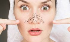 How to remove blackheads and whiteheads at home using homemade remedies. 5 useful tips to remove blackheads and whiteheads. Tips to avoid blackheads and whiteheads. What are blackheads and whiteheads? What are the causes of blackheads and whiteheads? Blackhead Remedies, Acne Remedies, Blackhead Remover, Get Rid Of Pores, Get Rid Of Blackheads, Different Types Of Acne, The Face, Le Point, Oily Skin