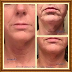 "Look at fellow consultant Benna K. Boring's results and look what she had to say about her journey with Rodan+Fields...  ""So why did I decide to start my Rodan + Fields business?  Because I totally fell in love with the products and this is why. At 53 skin starts to do some depressing things.  These are my very own before and after photos after 6 weeks on the Amp MD roller and Night Renewal Serum and 4 weeks on the Redefine/Reverse Regime and some occasional use of Acute"