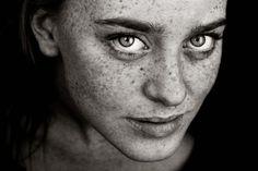 Hannes Caspar  Beautiful freckle face.