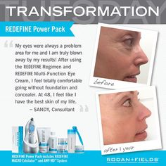"""TRANSFORMATION TUESDAY  Here is what Sandy has to say about her INCREDIBLE results with REDEFINE.  """"My eyes were always a problem area for me and I am truly blown away by my results!  After using the REDEFINE Regimen and REDEFINE Multi-Function Eye Cream, I feel totally comfortable going without foundation and concealer.  At 48, I feel like I have the best skin of my life.""""  Are you ready to go foundation and concealer free?  Message me to get started.  #transformationtuesday #agingbackwards"""