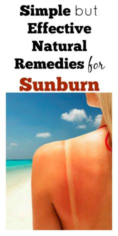Simple But Effective Natural Home Remedies for Sunburn