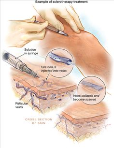 Sclerotherapy. What happens during a procedure for leg veins.