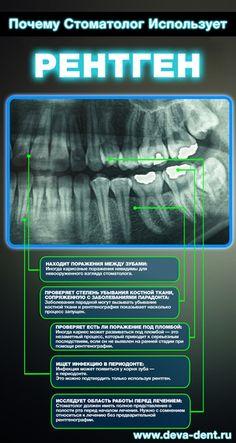 Диагностика и рентген зубов в Москве. Преимущества цифровой рентгенографии. #стоматолог #стоматология #инфографика
