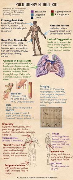 pulmonary embolism. Causes, signs, risk factors, diagnosis and management of pulmonary embolism: