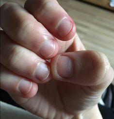Tirar a pele ao redor das unhas e roer veja que mal faz