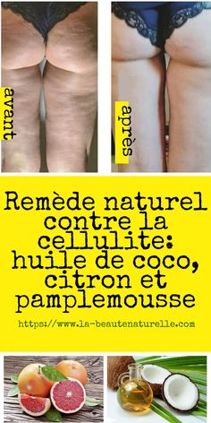 Combattre La Cellulite, Acting, Beauty Hacks, Medical, How To Plan, Health, Diy, Orange, Sport