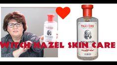 Witch Hazel Toner | Skin Care Benefits