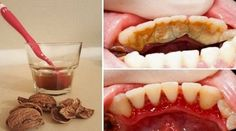 Get Rid of Tooth Plaque, Tartar and Bleeding Gums in a Very Simple And Easy Way Without Pain - Healthy Food House