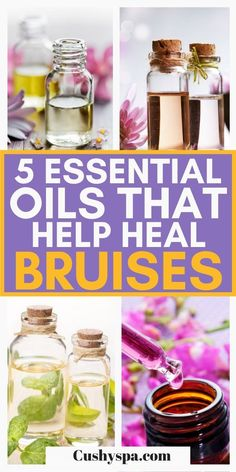 These helpful essential oil remedies will help you get rid of nasty bruises. These natural remedies with essential oils will help you look and feel better by alleviating bruises on your body. #EssentialOils #Aromatherapy List Of Essential Oils, Essential Oil Uses, Essential Oil Diffuser, Health Tips For Women, Health And Beauty, Health And Wellness, Aromatherapy Benefits, Aromatherapy Recipes, Lemongrass Essential Oil