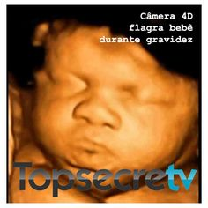 Câmera 4D flagra bebê durante uma gravidez. Nós ficamos maravilhados com as imagens, conseguimos ver nosso bebê comendo, chorando e espirrando. Acesse: http://www.topsecretv.com.br/camera-4d-flagra-bebe-na-gravidez/