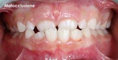 SDB Studio Dentistico Balestro: Morso crociato anteriore