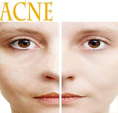 10 Home Remedies for Treating Acne Read full article---> http://womenkingdom.com/10-home-remedies-for-treating-acne/
