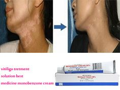 Monobenzone cream is an effective de-pigmentation cream used to treat Vitiligo. It works by removing the pigments of the skin around the patches, thus making it even-coloured.