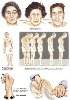 parkinson disease - clinical features Repinned by  SOS Inc. Resources  http://pinterest.com/sostherapy.