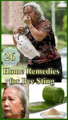 26 home remedies for bee sting