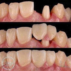 Восстановление десневого сосочка #стоматология #dentistry