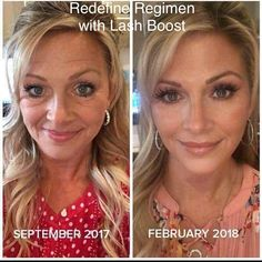 SHUT THE FRONT DOOR ! This is what a Regimen + Lash Boost bundle can do for your skin & lashes! In case you were wondering! Oh! And Lash Boost is FREE with your regimen purchase TODAY & TOMORROW ONLY!!! That is a $150 savings! Hurry! The LAST day is COMING UP Monday (TOMORROW) March 12th! What do you have to lose? PM Today! #lashesfordays #glow #agebackwards #radiance
