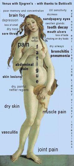 Sjogrens Syndrome symptoms