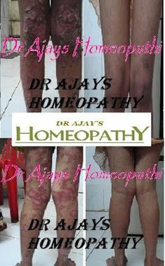 Best Ointment For Eczema. Itchy skin and eczema medication. On the list of various chronic skin disorders, eczema is among the most frequent. Eczema Remedies, Home Remedies For Acne, Homeopathic Remedies, Laser Eye Surgery Cost, Toenail Fungus Treatment, Alternative Medicine