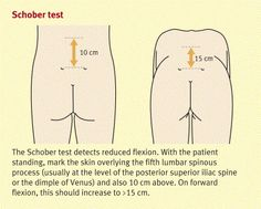 Schober test - used to evaluate Ankylosing Spondylitis
