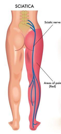 Sciatica during Pregnancy 7 Stretching Exercises
