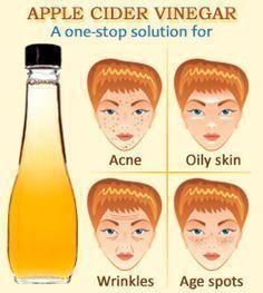 Simple Apple Cider Vinegar treatments for acne-free skin. Toner, mask, facial scrub, and spot treatment recipes.