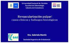 Videoconferencia: Revascularización pulpar, casos clínicos y hallazgos histológicos | Odonto-TV