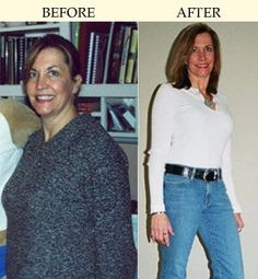 Anne- Before and After using the Gene Smart Anti-Inflammatory Diet and Exercise plan.