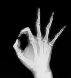 bigstock-X-ray-of-both-human-hand-OK--27043520