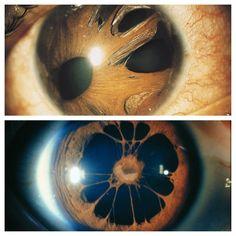 Polycoria of the eye