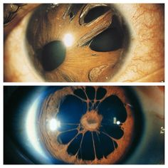 Polycoria of the eye