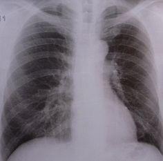 Die akute Bronchitis ist eine Entzündung der Bronchien, die man mit Homöopathie lindern kann. Die Symptome der akuten Bronchitis sind mehr oder weniger starkes Fieber verbunden mit Husten.