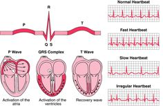 There are many different heart rhythms, the normal one is the normal sinus rhythm. There are a few other abnormal heart rhythms that I will go over as well. If you have questions about heart rhythms let me know below. Nursing Tips, Nursing Notes, Ekg Interpretation, P Wave, Cardiac Nursing, Heart Rhythms, Respiratory Therapy, Medical Information, Nurse Life
