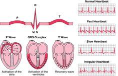 Atlas de Holter