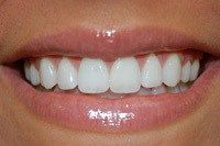 The two most important things are healthy teeth and gums so you can smile with confidence and a natural looking lipstick to match your skin tone. HEALTHY TEETH AND GUMS You can maintain good dental…