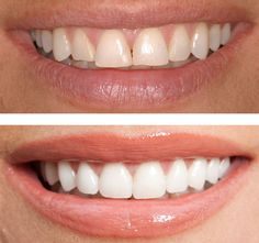 Cosmetic Dentistry Can Keep Your Smile Alive and Healthy