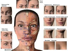 plastic, cosmetic and aesthetic surgery with the doctor claude le louarn  botox injection sites,