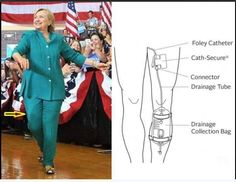 #SickHillary Is this an outline of a catheter? I read that she was dumping the Cat-Bag during restroom break at debate. She has no control over any of her bodily functions . She is pathetic the British are calling her an Islam Whore.