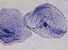 Microscópico óptico - http://pessoal.educacional.com.br/up/4740001/929720/t101.asp
