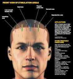 scalp acupuncture Find treatment in London?   Zak Acupuncture Clinic 07967525168