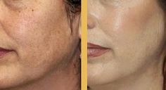 What a peel can do for hyperpigmentation.
