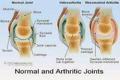Acupuncture Echallens: Cas d'Arthrose du genou (traitement par acupuncture)