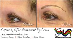 """Before and After Permanent """"Feather-Stroke"""" Eyebrows. For more information on all our services, call us to set up a complimentary consultation appointment today!"""