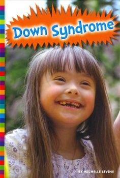 J 616.85 LEV. Describes what it is like to live with Down syndrome, what its symptoms are, and how it is treated.