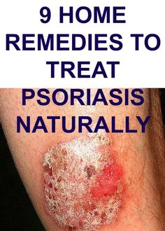 This article is explaining 9 herbs and home remedies to treat psoriasis naturally. These can be effective when used with traditional treatment options. Scalp Psoriasis Treatment, Plaque Psoriasis, Toenail Fungus Treatment, Psoriasis Remedies, Psoriasis Scalp, Psoriasis Arthritis, Itchy Scalp, Home Remedies, Health
