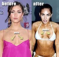 Top 10 Celebrity Plastic Surgery Gone Wrong – Complete ...