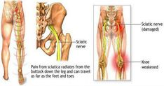 Sciatica symptoms are present in a large number of people and are very common nowadays. This is a very common disease and it is often called other names such as pain in the lower back,lumbago, [. Sciatica Symptoms, Sciatica Pain Relief, Sciatic Pain, Sciatic Nerve Damage, Nerve Pain, Douleur Nerf, Posture Fix, Bad Posture, Yoga Poses