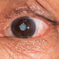 Long waiting times for cataract surgeries in Gauteng hospitals may be a thing of the past with continuous surgery blitzes on the cards. Human Tissue, Eye Drops, Health Department, Healthy Nutrition, Vitamin C, Surgery, Stock Photos, Eyes, Scientists